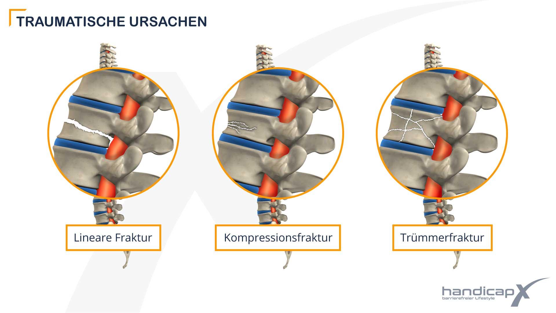 Grafik zeigt verschiedene Brüche des Wirbelkörpers als traumatische Ursachen bei Querschnittlähmung